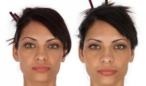 Selphyl Before and After2